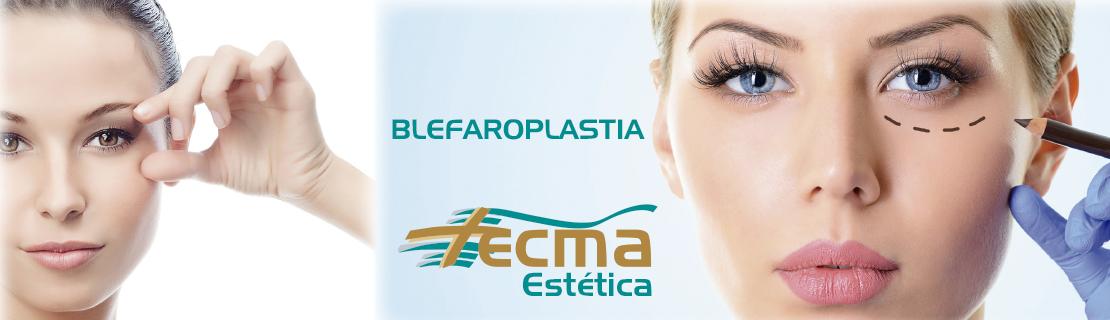 Blefaroplastia cirugía facial