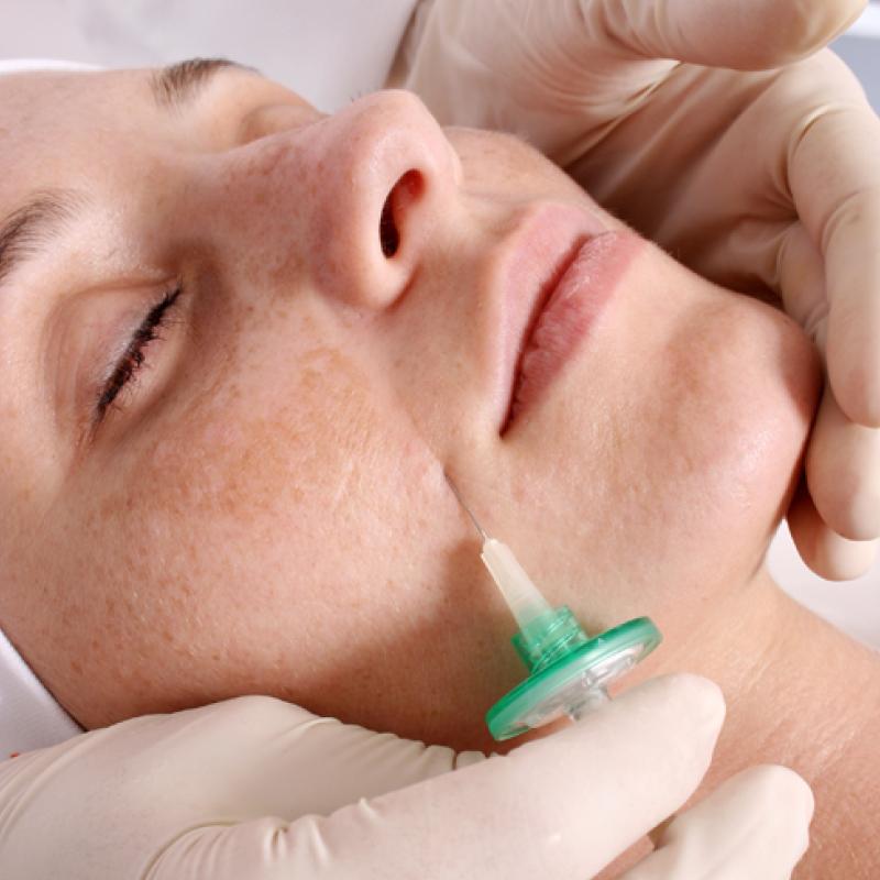 Carboxiterapia facial en Alzira