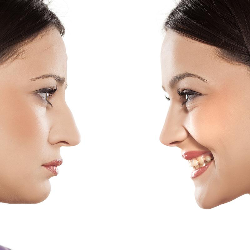 rinoplastia cirugía facial