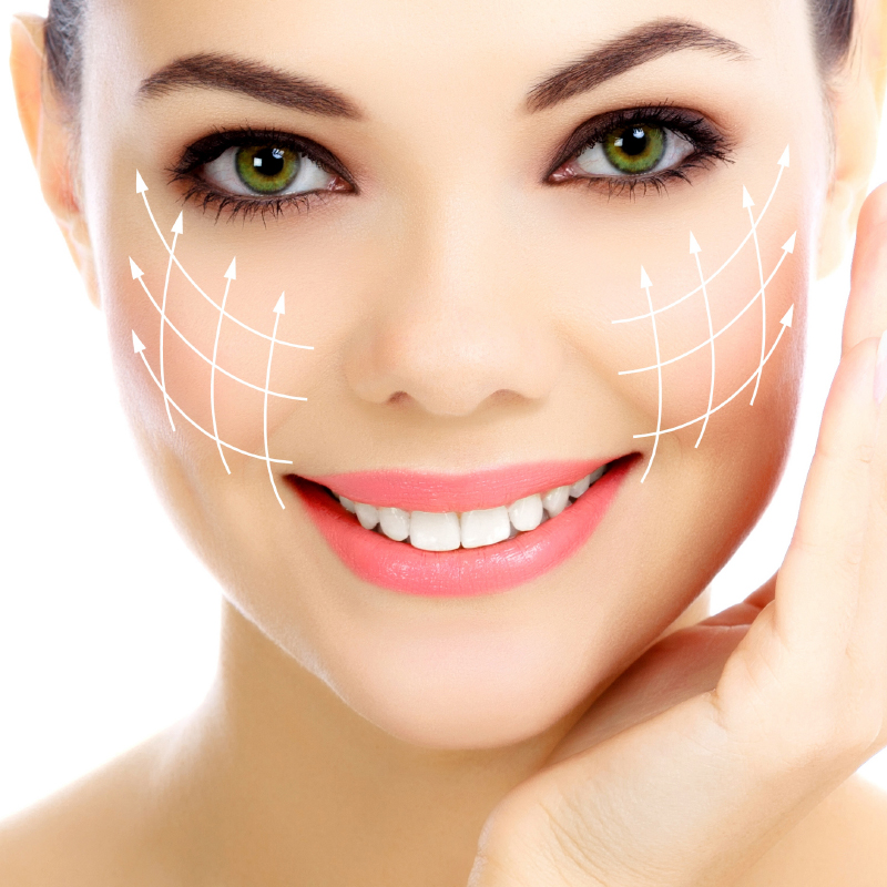 Hilos de suspensión cirugía facial
