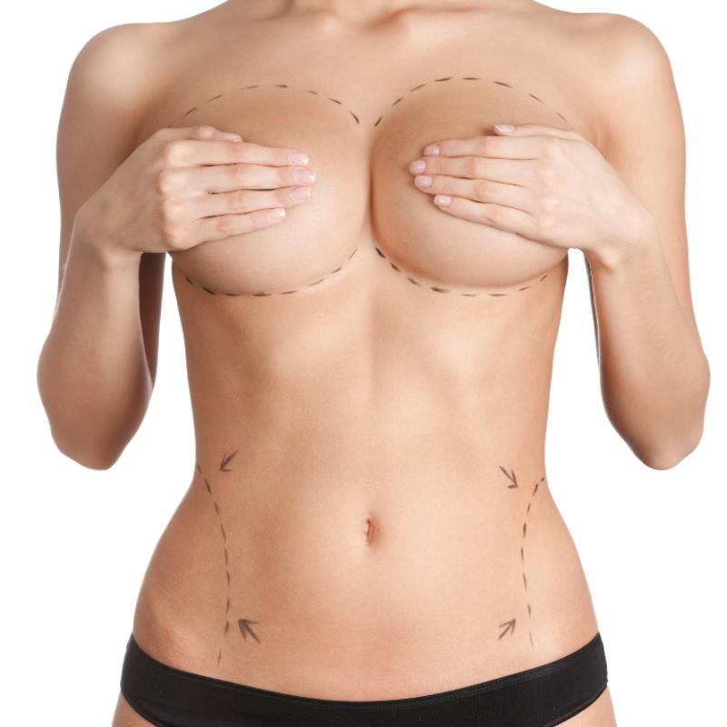 lipofilling cirugia estética