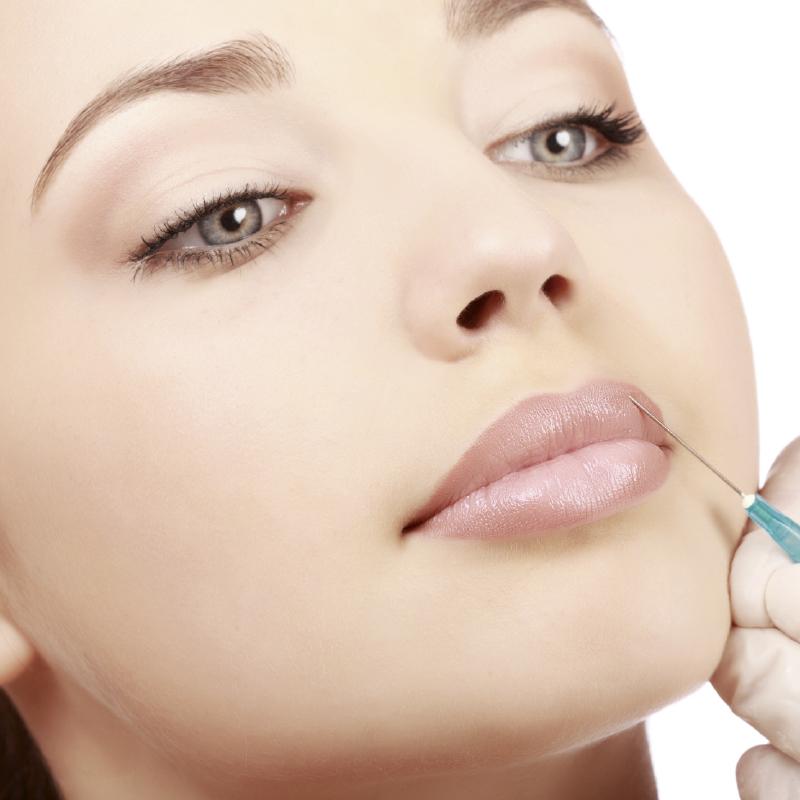 Relleno de labios cirugía estética en Valencia