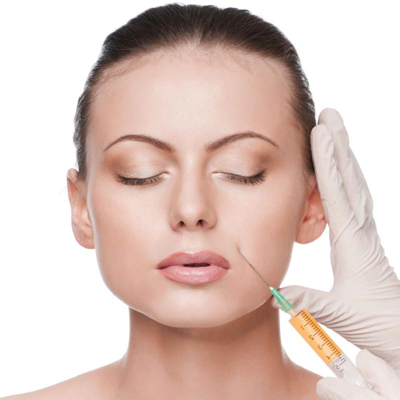 Relleno de arrugas y surcos medicina estética