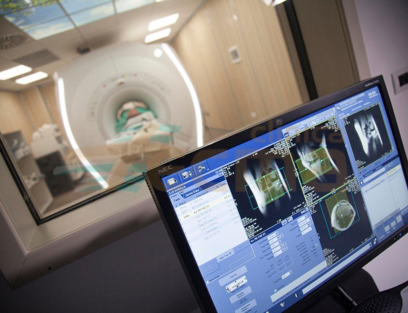 Radio Diagnóstico por imagen