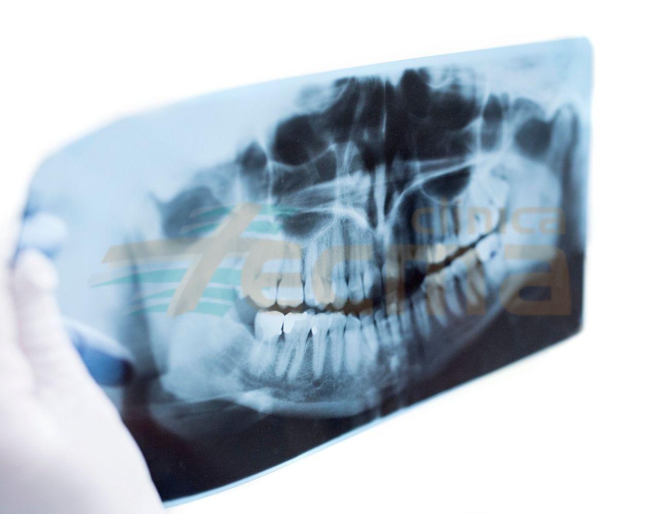 Ortopantomografía y Teleradiografía